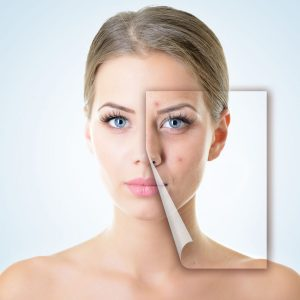 22674743 - portrait of beautiful woman with problem and clean skin, aging and youth concept, beauty treatment